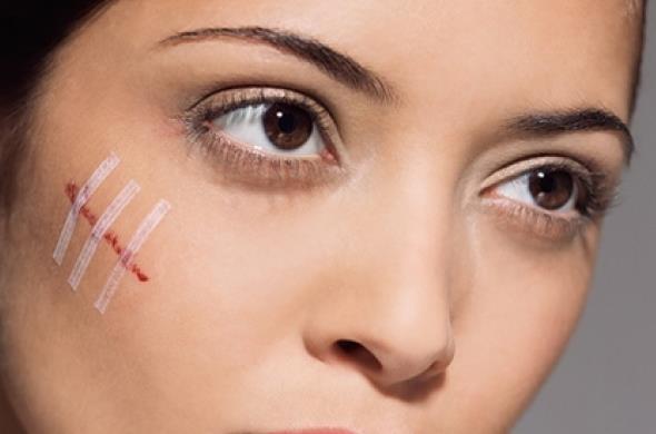 Как быстро избавиться от царапин на лице