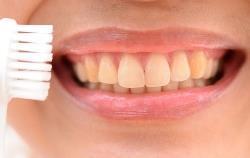 Почему зубы желтеют