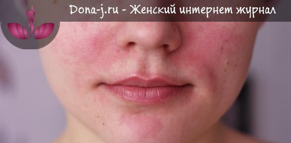Средства от покраснения кожи лица — Красивое лицо